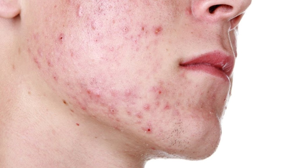 Pie Pih Atrophic How To Get Rid Your Acne Scars Glow By Me